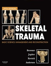 Skeletal Trauma