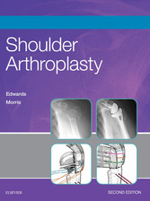 Shoulder Arthroplasty E-Book