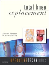 Operative Techniques: Total Knee Replacement