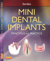 Mini Dental Implants - Principles and Practices