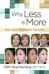 Why Less Is More - Not Your Mothers Facelift