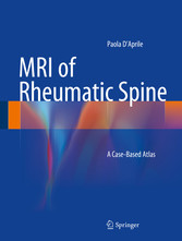 MRI of Rheumatic Spine - A Case-Based Atlas