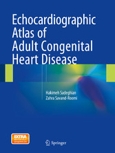 Echocardiographic Atlas of Adult Congenital Heart Disease bei Ciando - eBooks