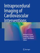 Intraprocedural Imaging of Cardiovascular Inter...
