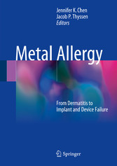 Metal Allergy - From Dermatitis to Implant and ...