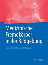 Medizinische Fremdkörper in der Bildgebung - Ko...