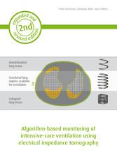 Algorithm-based monitoring of intensive-care ve...