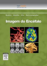 Imagem do Encéfalo