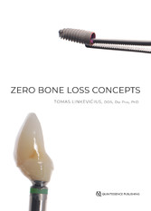 Zero Bone Loss Concepts