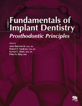 Fundamentals of Implant Dentistry, Volume 1 Prosthodontic Principles