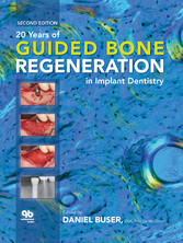 20 Years of Guided Bone Regeneration in Implant Dentistry Second Edition