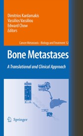 Bone Metastases A translational and clinical approach
