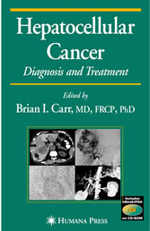 Hepatocellular Carcinoma Diagnosis and Treatment