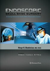 Endoscopic Skull Base Surgery A Comprehensive Guide with Illustrative Cases