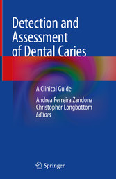 Detection and Assessment of Dental Caries A Clinical Guide