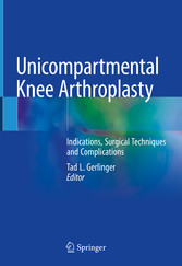 Unicompartmental Knee Arthroplasty Indications, Surgical Techniques and Complications