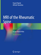 MRI of the Rheumatic Spine A Case-Based Atlas