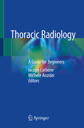 Thoracic Radiology A Guide for Beginners