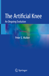 The Artificial Knee An Ongoing Evolution