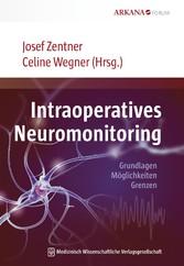 Intraoperatives Neuromonitoring Grundlagen, Möglichkeiten, Grenzen
