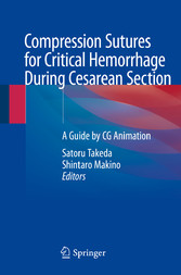 Compression Sutures for Critical Hemorrhage During Cesarean Section A Guide by CG Animation